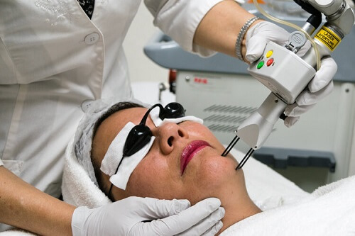 Laser skin resurfacing at Treasure Coast Laser & Aesthetics in Port St. Lucie.