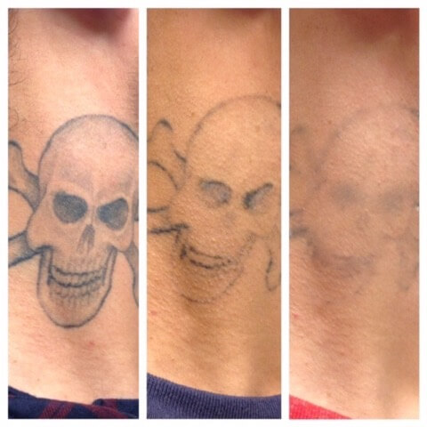 Laser tattoo removal treasure coast laser aesthetics for Laser tattoo removal manhattan